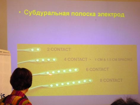 The doctor of medical sciences, the professor of branch of neurophysiology нейроцентра hospitals of University Uppsala Karin Edebol of Yokes-olofsson (Sweden) shows a slide with a photo субдуральной a strip of electrodes for интракраниальной to record ээг.